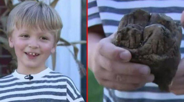Çocuğun ayağına 12 bin yıl önce yaşayan hayvanın dişi takıldı