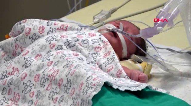 Muhammet ismail bebek, 100 dakika kalbi durdurularak ameliyat edildi